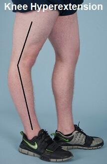 hyperextended-knee