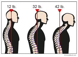 neck droop